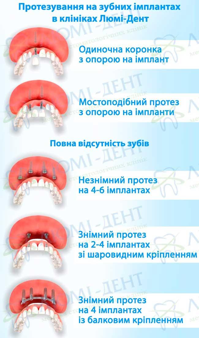 Імплантація зубів види методи фото Люми-Дент