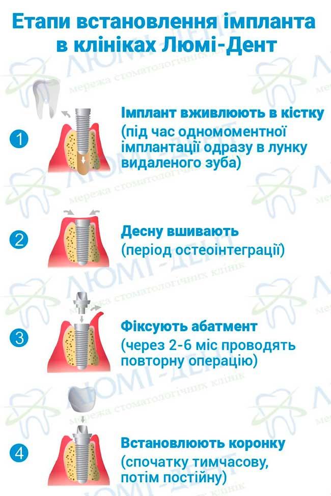 Методи імплантації зубів фото Люмі-Дент