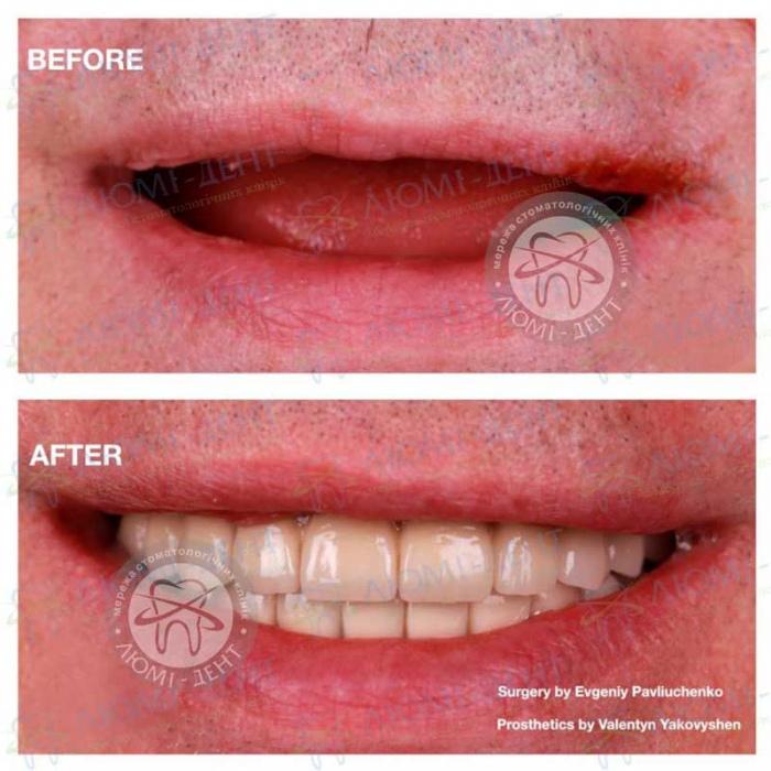 плюсы и минусы имплантации зубов фото ЛюмиДент