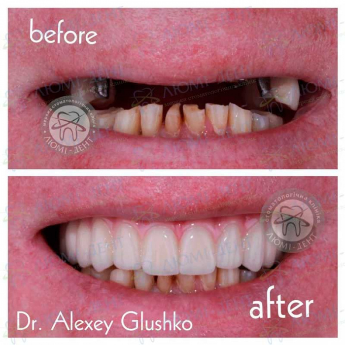 плюсы и минусы зубных имплантов фото ЛюмиДент