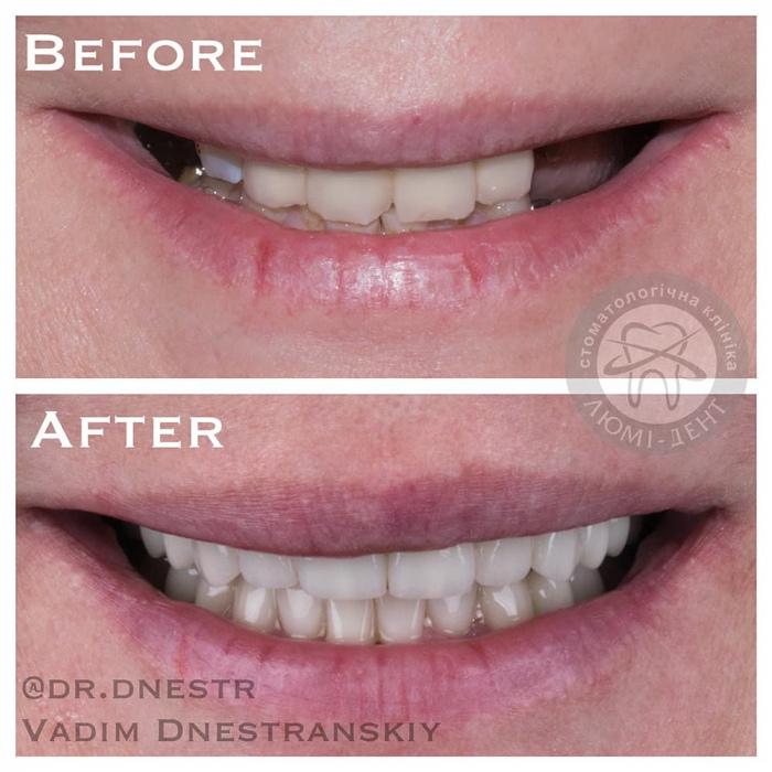 Импланты зубов имплантанты фото ЛюмиДент