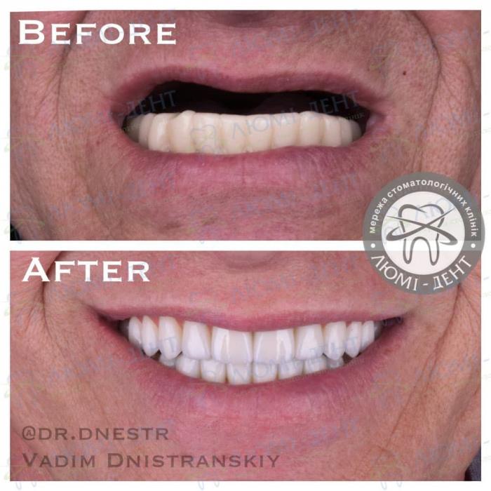 имплантация зубов на один 1 день фото Люмидент