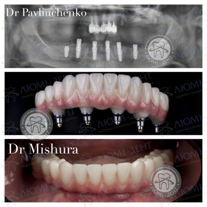 Відторгнення імпланту зуба фото Люмі-Дент