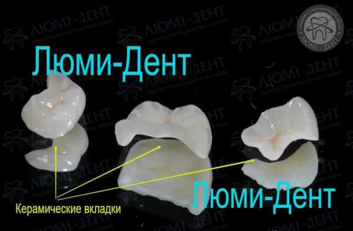 Керамические вкладки на зубы Киев фото Люми-Дент