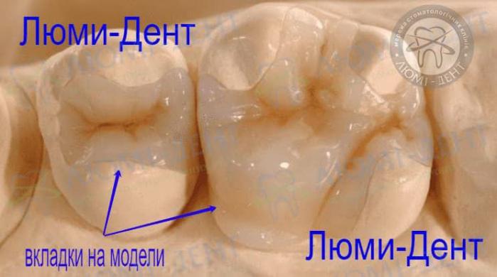Керамические вкладки на зубы Киев картинки Люми-Дент