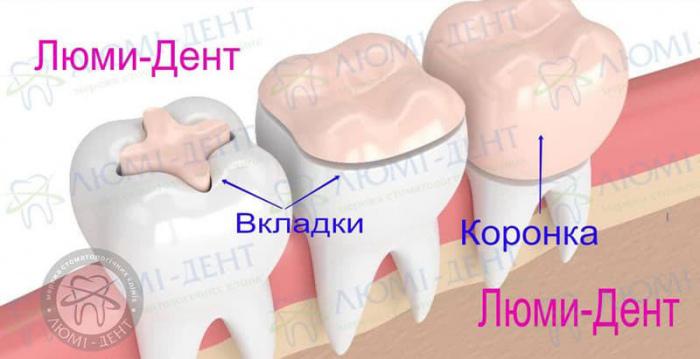 Керамическая вкладка на зуб фото Люмидент