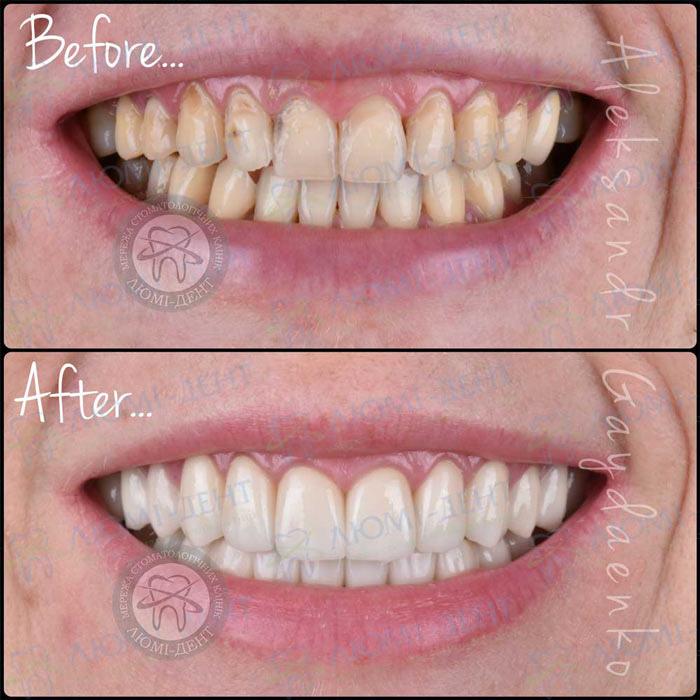 Керамические вкладки на зубы фото Люми-Дент