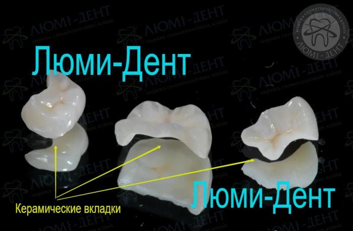 Керамические вкладки на зубы фото Люмидент