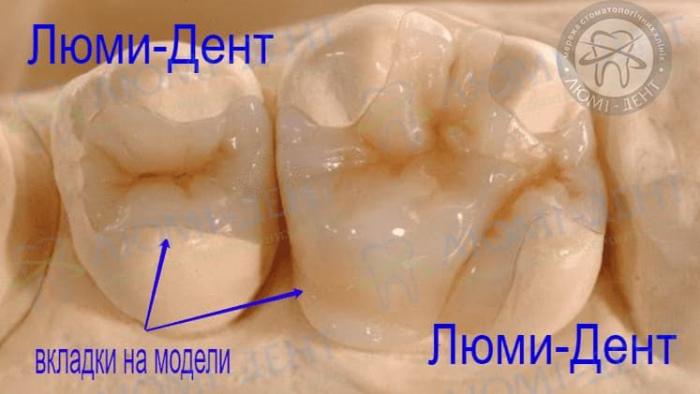 Зубная вкладка на зубы фото ЛюмиДент