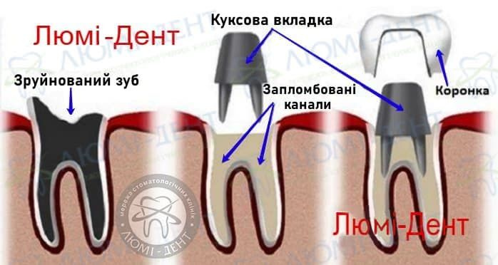 Коронки на зубы фото Люми-Дент