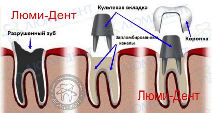 Crowns on teeth photo Lumi-Dent
