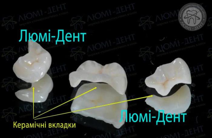 Керамічні вкладки на зуби Київ фото Люмі-Дент