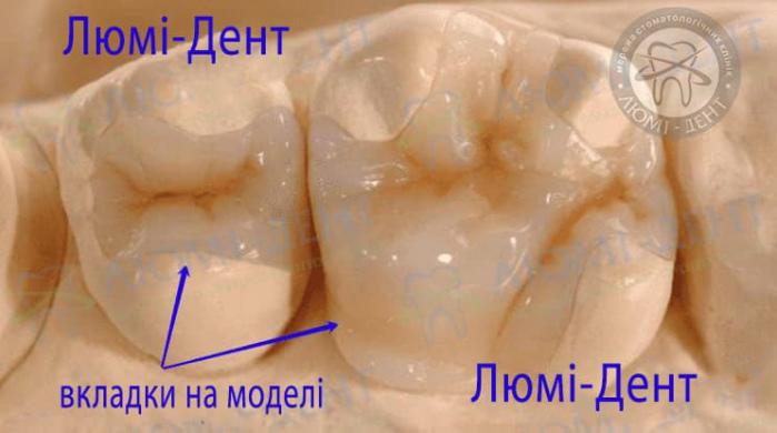 Керамічні вкладки на зуби Київ картинки Люмі-Дент