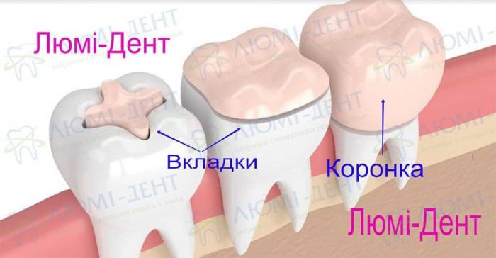 Керамічна вкладка на зуб фото Люмідент