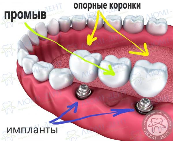 Несъемные мостовидные протезы на зубы Люми-Дент