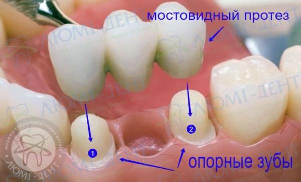Мостовидный протез на зубы фото Люми-Дент