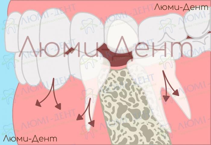 Костная имплантация зубов фото Киев Люми-Дент