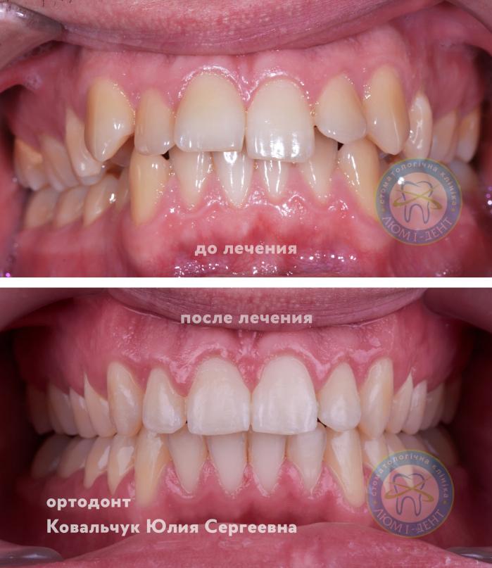 Хороший детский Ортодонт стоматолог Киев Люмидент