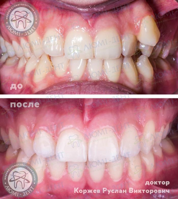 Ортодонт стоматолог исправление прикуса Киев Люми-Дент