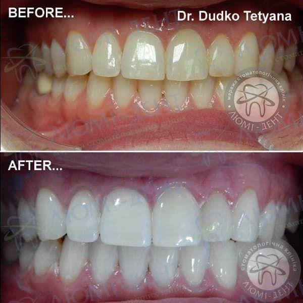 Отбеливание зубов дома фото до и после Люми-Дент