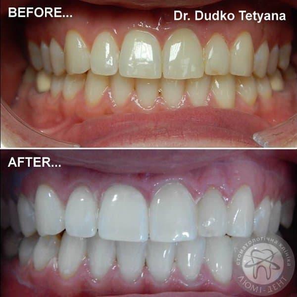 Отбеливание зубов фото Люми-Дент