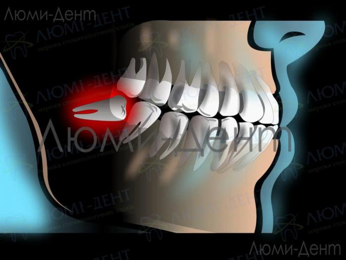 Перикороніт зуба мудрості фото Люмі-Дент