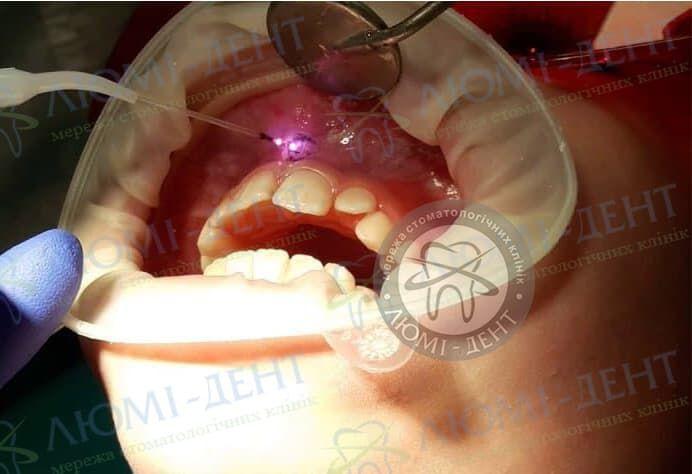 Пластика вуздечки верхньої губи у дорослих фото лікування Київ Люмі-Дент