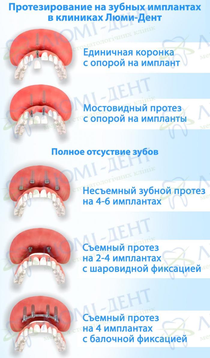 Имплантация зубов протезирование фото Люми-Дент
