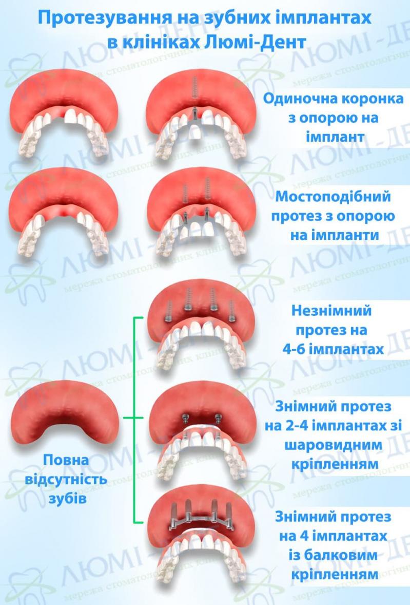 Як встановлюють імплант зуба фото Люмі-Дент