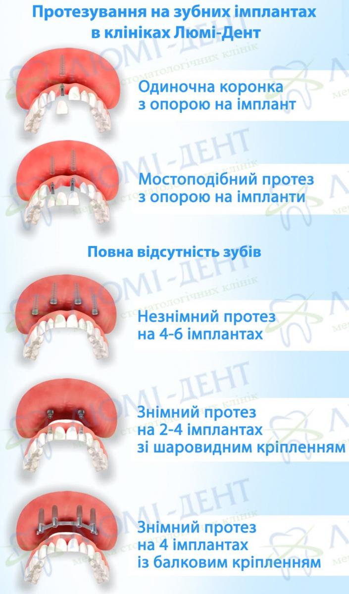 Імплантація зубів імпланти імплантати фото Люми-Дент