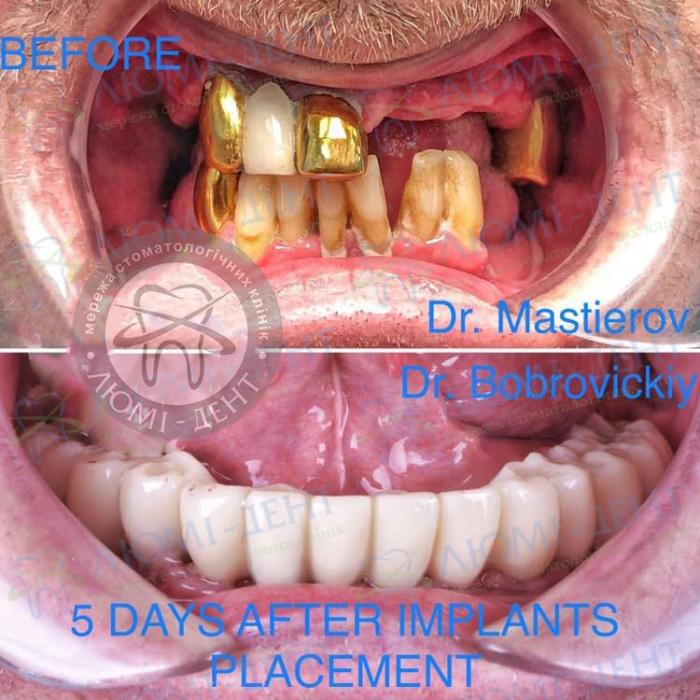 Зубные протезы на имплантах фото до и после Киев Люми-Дент
