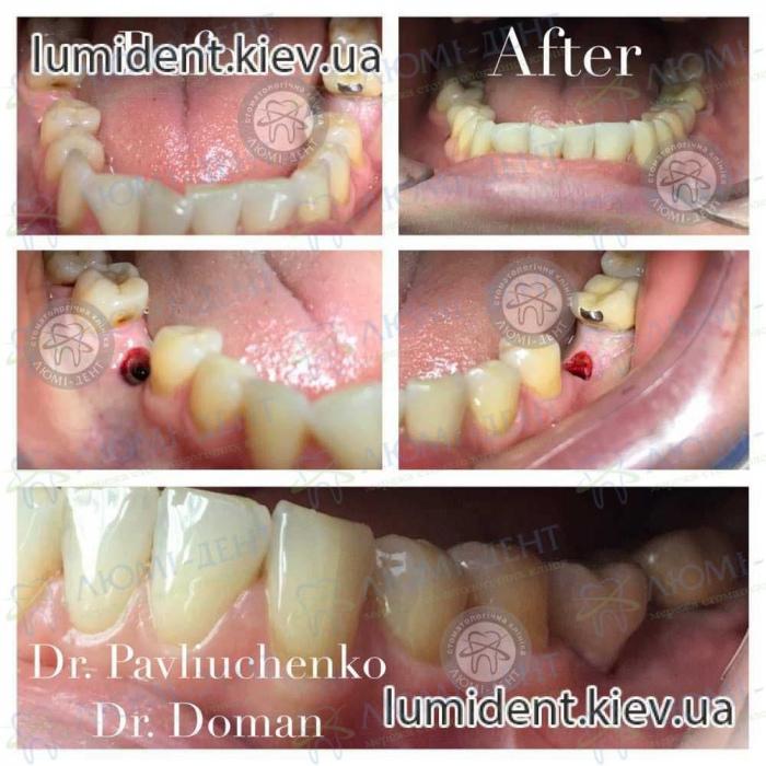 Імпланти або незнімні зубні протези фото Київ Люмі-Дент