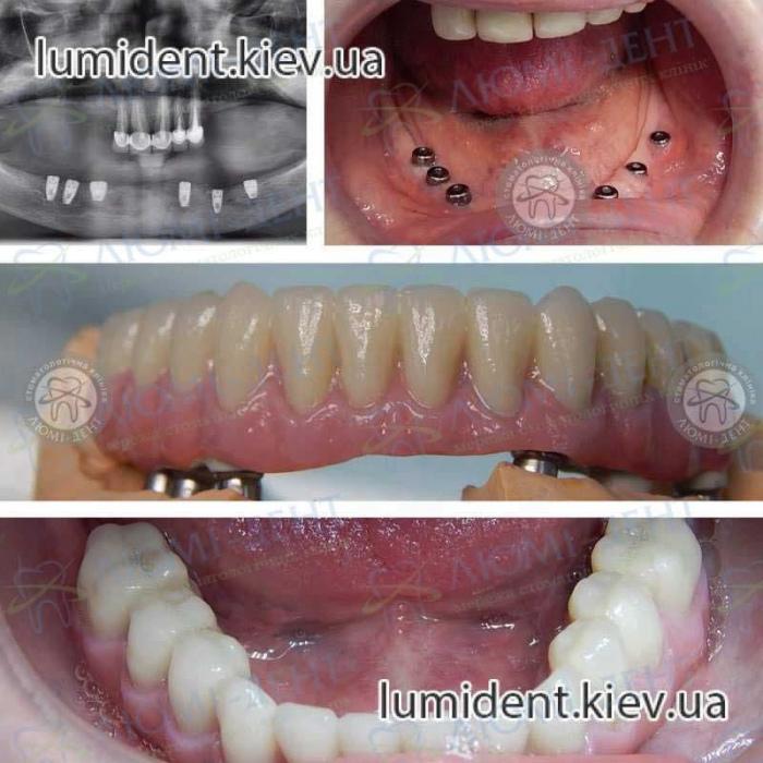 Несъемные зубные протезы на имплантах цена фото Киев  Люми-Дент