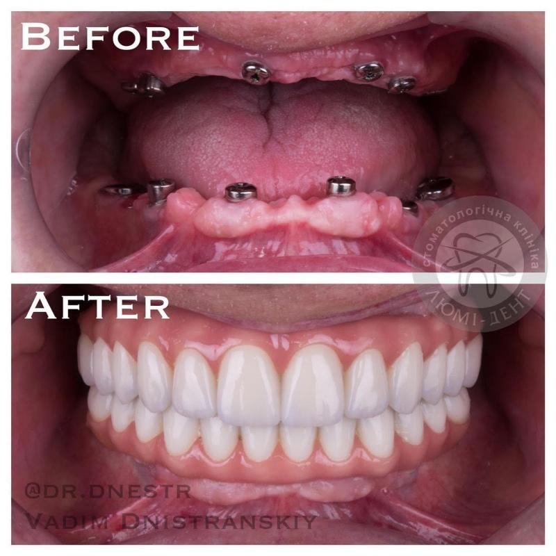 dental prothetics Lumi-Dent