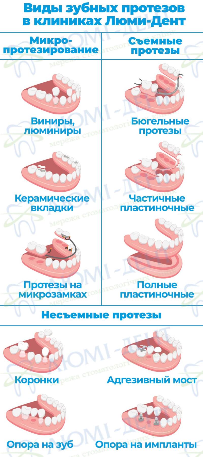 Съемные зубные протезы фото Люми-Дент