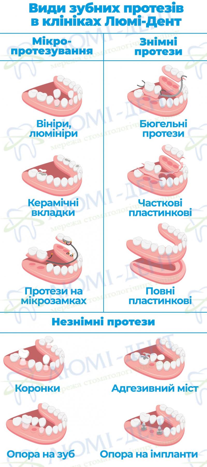 Коронки на зуби види фото Люмі-Дент