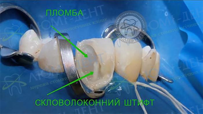 Відновлення зруйнованого зуба Київ фото Люмі-Дент