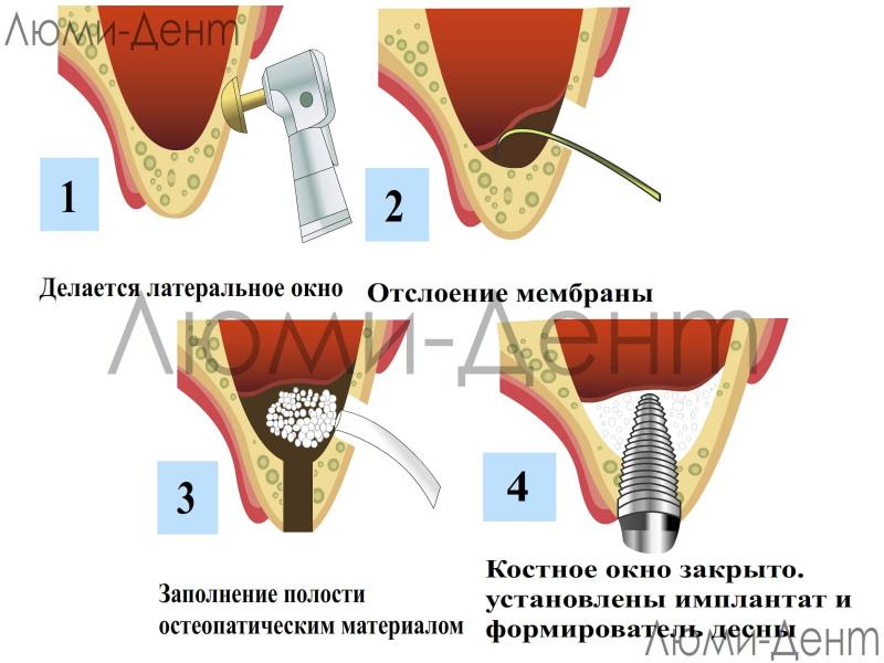 Процедура синус ліфтинга