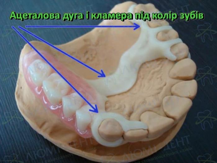 Знімні протези зубів фото Люмі-Дент