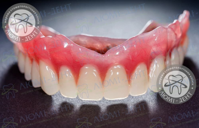 Съемное протезирование зубов протезы Киев фото Люми-Дент