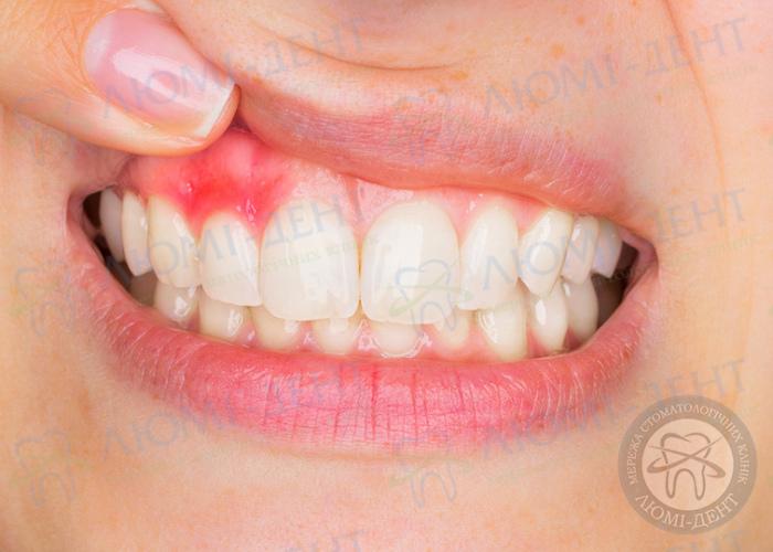 Лікування ясен і слизової рота фото Люмі-Дент