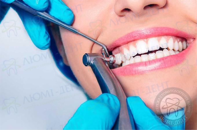 Професійне чищення зубів фото Люмі-Дент