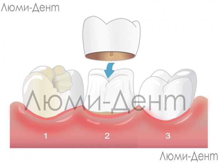 Dental crowns photo Lumi-Dent
