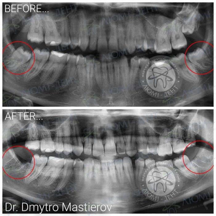 Удаление зубов мудрости Киев фото Люми-Дент