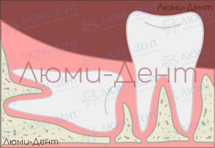 Удаление восьмого зуба киев фото Люми-Дент