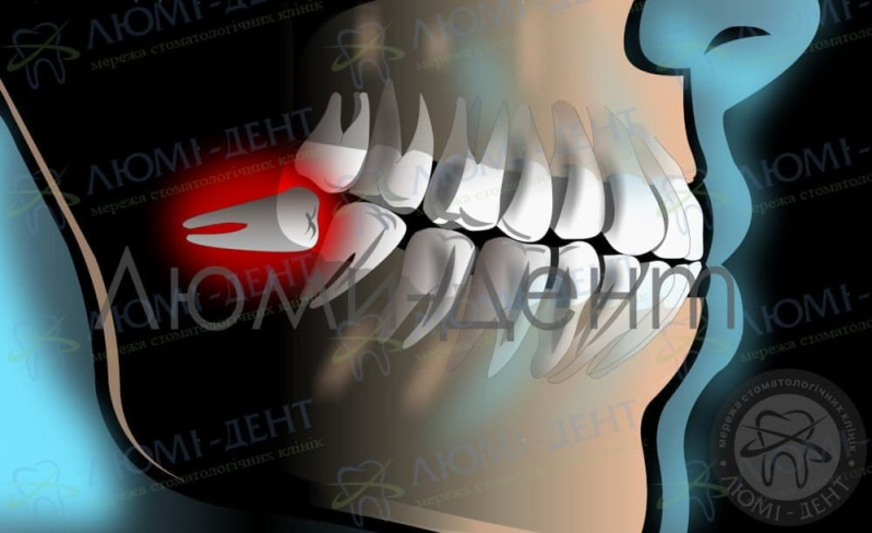 Корни зуба мудрости фото Люми-Дент