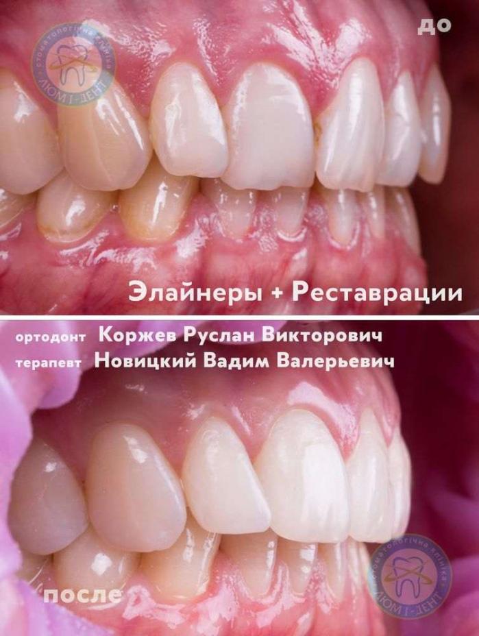 Как выглядит правильный прикус зубов фото Киев Люми-Дент