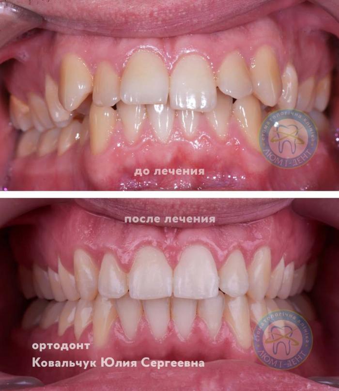Патологический прикус зубов фото Киев ЛюмиДент
