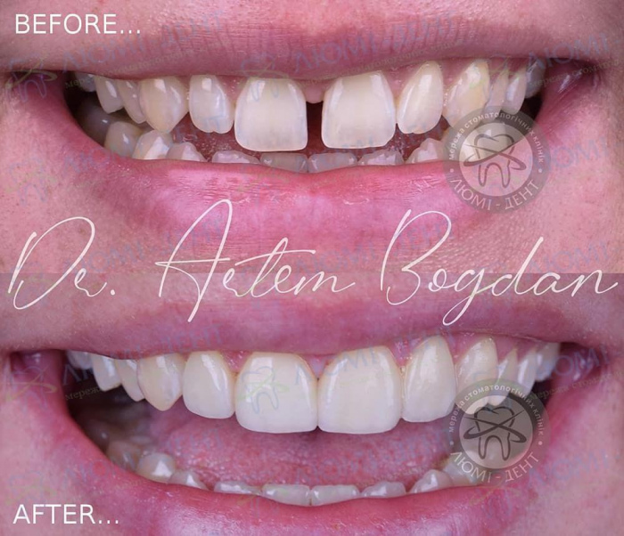 Вінір з США установка на зуби фото київ Люмі-Дент