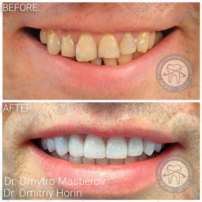 Безметалловая керамика коронки на зубы фото Люми-Дент